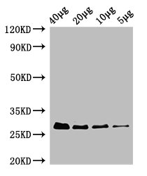 RPS2 / Ribosomal Protein S2 Antibody - Western Blot Positive WB detected in: Rosseta bacteria lysate at 40µg, 20µg, 10µg, 5µg All lanes: rpsB antibody at 0.42µg/ml Secondary Goat polyclonal to rabbit IgG at 1/50000 dilution Predicted band size: 27 kDa Observed band size: 27 kDa