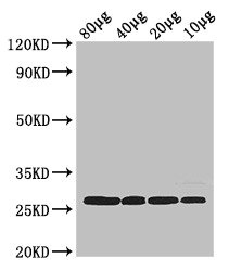 RPS2 / Ribosomal Protein S2 Antibody - Western Blot Positive WB detected in: Rosseta bacteria lysate at 80µg, 40µg, 20µg, 10µg All lanes: rpsB antibody at 2.5µg/ml Secondary Goat polyclonal to rabbit IgG at 1/50000 dilution predicted band size: 27 kDa observed band size: 27 kDa