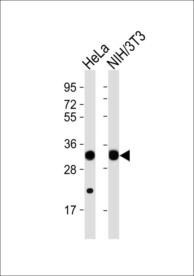All lanes : Anti-RPS2 Antibody at 1:1000 dilution Lane 1: HeLa whole cell lysates Lane 2: NIH/3T3 whole cell lysates Lysates/proteins at 20 ug per lane. Secondary Goat Anti-Rabbit IgG, (H+L),Peroxidase conjugated at 1/10000 dilution Predicted band size : 31 kDa Blocking/Dilution buffer: 5% NFDM/TBST.