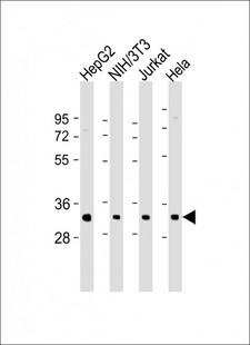 RPS2 / Ribosomal Protein S2 Antibody - All lanes: Anti-RPS2 Antibody (N-Term) at 1:2000 dilution Lane 1: HepG2 whole cell lysate Lane 2: NIH/3T3 whole cell lysate Lane 3: Jurkat whole cell lysate Lane 4: Hela whole cell lysate Lysates/proteins at 20 µg per lane. Secondary Goat Anti-Rabbit IgG, (H+L), Peroxidase conjugated at 1/10000 dilution. Predicted band size: 31 kDa Blocking/Dilution buffer: 5% NFDM/TBST.