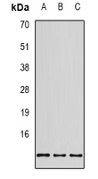 Western blot analysis of RPS20 expression in SHSY5Y (A); MCF7 (B); HEK293T (C) whole cell lysates.