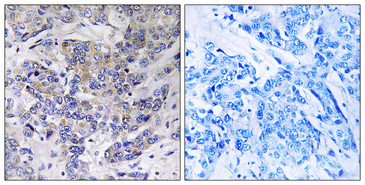 Immunohistochemistry analysis of paraffin-embedded human breast carcinoma tissue, using RPS21 Antibody. The picture on the right is blocked with the synthesized peptide.