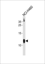 RPS21 Antibody western blot of NCI-H460 cell line lysates (35 ug/lane). The RPS21 antibody detected the RPS21 protein (arrow).