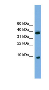 RPS21 / Ribosomal Protein S21 Antibody - RPS21 antibody Western blot of Jurkat lysate. This image was taken for the unconjugated form of this product. Other forms have not been tested.