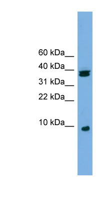 RPS21 antibody Western blot of Jurkat lysate. This image was taken for the unconjugated form of this product. Other forms have not been tested.