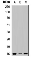 RPS23 / Ribosomal Protein S23 Antibody - Western blot analysis of RPS23 expression in SHSY5Y (A); HEK293T (B); NIH3T3 (C) whole cell lysates.