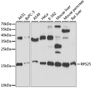 RPS25 / Ribosomal Protein S25 Antibody - Western blot analysis of extracts of various cell lines, using RPS25 antibody at 1:1000 dilution. The secondary antibody used was an HRP Goat Anti-Rabbit IgG (H+L) at 1:10000 dilution. Lysates were loaded 25ug per lane and 3% nonfat dry milk in TBST was used for blocking. An ECL Kit was used for detection and the exposure time was 15s.