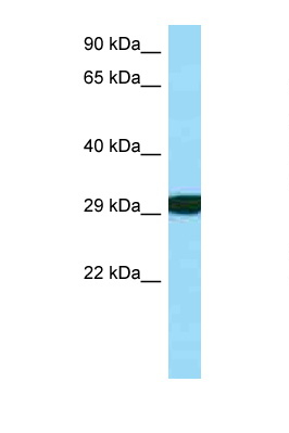 RPS3 antibody LS-C146497 Western blot of Fetal Kidney lysate. Antibody concentration 1 ug/ml.  This image was taken for the unconjugated form of this product. Other forms have not been tested.