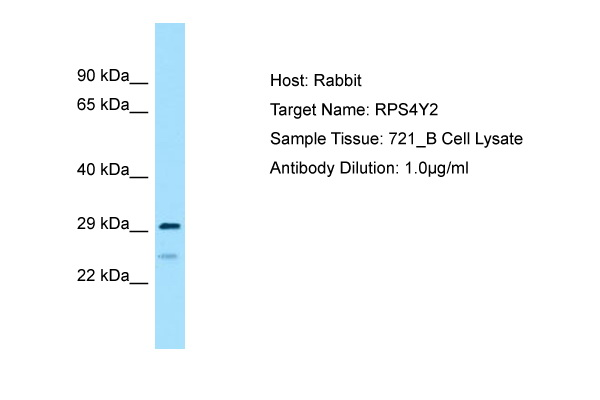 RPS4X + RPS4Y1 + RPS Antibody -  This image was taken for the unconjugated form of this product. Other forms have not been tested.