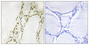 IHC of paraffin-embedded human thyroid gland tissue, using S6K-alpha2 Antibody. The picture on the right is treated with the synthesized peptide.