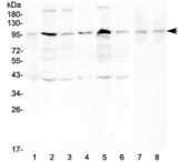 RPS6KA2 / RSK3 Antibody - Western blot testing of human 1) placenta, 2) HeLa, 3) PC-3, 4) A431, 5) K562, 6) PANC-1, 7) rat testis and 8) mouse testis with RSK3 antibody at 0.5ug/ml. Expected molecular weight ~90 kDa.