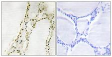 RPS6KA2 / RSK3 Antibody - Peptide - + Immunohistochemistry analysis of paraffin-embedded human thyroid gland tissue, using S6K-a2 antibody.