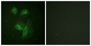 Immunofluorescence analysis of HeLa cells, using p70 S6 Kinase Antibody. The picture on the right is blocked with the synthesized peptide.