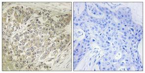 IHC of paraffin-embedded human breast carcinoma tissue, using p70 S6 Kinase (Ab-424) Antibody. The picture on the right is treated with the synthesized peptide.