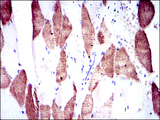 IHC of paraffin-embedded muscle tissues using RPS6KB1 mouse monoclonal antibody with DAB staining.
