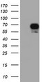 HEK293T cells were transfected with the pCMV6-ENTRY control (Left lane) or pCMV6-ENTRY RPS6KB1 (Right lane) cDNA for 48 hrs and lysed. Equivalent amounts of cell lysates (5 ug per lane) were separated by SDS-PAGE and immunoblotted with anti-RPS6KB1.