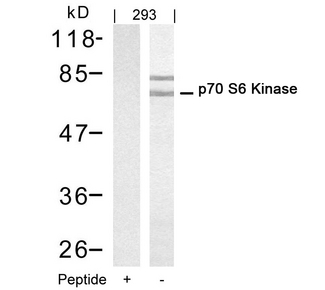Western blot of extracts from 293 cells using p70 S6 Kinase(Ab-421) antibody(Lane 2) and the same antibody preincubated with blocking peptide(Lane1).