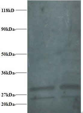 Western blot of 40S ribosomal protein S9 antibody at 2 ug/ml. Lane 1:293T whole cell lysate. Lane 2: EC109 whole cell lysate. Secondary: Goat polyclonal to Rabbit IgG at 1:15000 dilution. Predicted band size: 21 kDa. Observed band size: 26 kDa Additional bands at: 28 kDa. We are unsure as to the identity of these extra bands. 40S ribosomal protein S9 contains a number of potential phosphorylation and acetylation sites (SwissProt) which may explain its migration at a higher molecular weight than predicted.  This image was taken for the unconjugated form of this product. Other forms have not been tested.