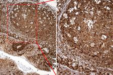 RPSA / Laminin Receptor Antibody - Immunohistochemical staining of paraffin-embedded Human tonsil within the normal limits using anti-RPSA mouse monoclonal antibody. (Heat-induced epitope retrieval by 1mM EDTA in 10mM Tris buffer. (pH8.5) at 120°C for 3 min. (1:2000)
