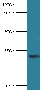 RPSA / Laminin Receptor Antibody - Western blot of 40S ribosomal protein SA antibody at 2 ug/ml with mouse small intestine Secondary Goat polyclonal to Rabbit lgG at 1:15000 dilution. Predicted band size: 33 KDa. Observed band size: 33 KDa.  This image was taken for the unconjugated form of this product. Other forms have not been tested.