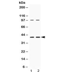 RPSA / Laminin Receptor Antibody - Western blot testing of human 1) HeLa and 2) U-2 OS cell lysate with RPSA antibody at 0.5ug/ml. Routinely observed molecular weight: 37-40 kDa and 67 kDa.