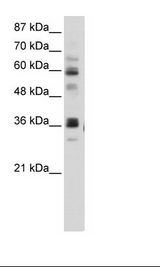 RPUSD2 Antibody - HepG2 Cell Lysate.  This image was taken for the unconjugated form of this product. Other forms have not been tested.