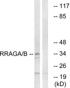 RRAGA+B Antibody - Western blot analysis of lysates from HepG2 cells, using RRAGA/B Antibody. The lane on the right is blocked with the synthesized peptide.