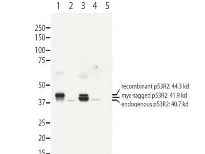RRM2B / P53R2 Antibody - Anti-RRM2B antibody - Western Blot. Western blot of affinity purified anti-RRM2B antibody shows detection of recombinant (lanes 1 and 3) and endogenous protein (lanes 1 to 4) in whole cell extracts from transfected 293T. Lane 1 contains purified recombinant human p53R2. Lane 2 contains 293T cells transfected with control vector. Lane 3 contains 293T transfected with p53R2-myc. Lane 4:293T transfected with ScRNA. Lane 5:293T transfected with p53R2 SiRNA The band at 40.7 kD, indicated by the bottom arrowhead, corresponds to the expected molecular weight of endogenous RRM2B. The band with the middle arrow corresponds to myc-tagged p53R2 at 41.9kD. The highest band at 44.3 kD corresponds to recombinant p53R2. Primary antibody was diluted to 1 ug/mL and incubated overnight at 4C. ECL detection was used.