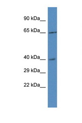 RRS1 antibody Western blot of 293T Cell lysate. Antibody concentration 1 ug/ml.  This image was taken for the unconjugated form of this product. Other forms have not been tested.