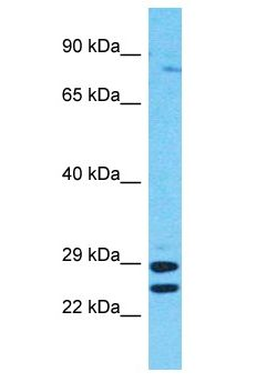 RSHL1 Antibody - RSHL1 antibody Western Blot of HepG2. Antibody dilution: 1 ug/ml.  This image was taken for the unconjugated form of this product. Other forms have not been tested.