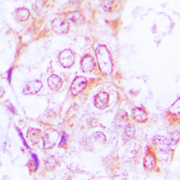 RSK1 + RSK2 + RSK3 Antibody - Immunohistochemical analysis of RSK1/2/3 (pT573/570/577) staining in human lung cancer formalin fixed paraffin embedded tissue section. The section was pre-treated using heat mediated antigen retrieval with sodium citrate buffer (pH 6.0). The section was then incubated with the antibody at room temperature and detected using an HRP conjugated compact polymer system. DAB was used as the chromogen. The section was then counterstained with hematoxylin and mounted with DPX.