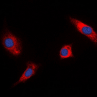 RSK1 + RSK2 + RSK3 Antibody - Immunofluorescent analysis of RSK1/2/3 (pT573/570/577) staining in HeLa cells. Formalin-fixed cells were permeabilized with 0.1% Triton X-100 in TBS for 5-10 minutes and blocked with 3% BSA-PBS for 30 minutes at room temperature. Cells were probed with the primary antibody in 3% BSA-PBS and incubated overnight at 4 deg C in a humidified chamber. Cells were washed with PBST and incubated with a DyLight 594-conjugated secondary antibody (red) in PBS at room temperature in the dark. DAPI was used to stain the cell nuclei (blue).