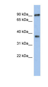RSPH10B Antibody - RSPH10B antibody Western blot of Jurkat lysate. This image was taken for the unconjugated form of this product. Other forms have not been tested.