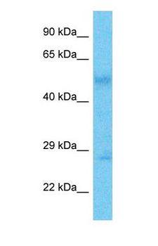 RSPH10B Antibody - Western blot of R10B2 Antibody with human Gallbladder Tumor lysate.  This image was taken for the unconjugated form of this product. Other forms have not been tested.