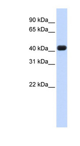 RTCD1 antibody Western blot of Fetal Heart lysate. This image was taken for the unconjugated form of this product. Other forms have not been tested.