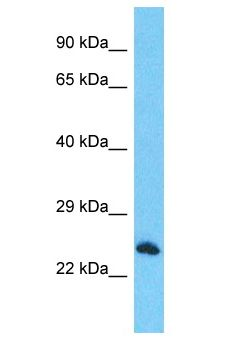 RTFDC1 Antibody - RTFDC1 antibody Western Blot of HepG2. Antibody dilution: 1 ug/ml.  This image was taken for the unconjugated form of this product. Other forms have not been tested.