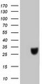 HEK293T cells were transfected with the pCMV6-ENTRY control (Left lane) or pCMV6-ENTRY C20orf43 (Right lane) cDNA for 48 hrs and lysed. Equivalent amounts of cell lysates (5 ug per lane) were separated by SDS-PAGE and immunoblotted with anti-C20orf43.