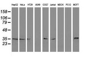 RTFDC1 Antibody - Western blot of extracts (35 ug) from 9 different cell lines by using anti-C20orf43 monoclonal antibody (HepG2: human; HeLa: human; SVT2: mouse; A549: human; COS7: monkey; Jurkat: human; MDCK: canine; PC12: rat; MCF7: human).