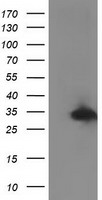 RTFDC1 Antibody - HEK293T cells were transfected with the pCMV6-ENTRY control (Left lane) or pCMV6-ENTRY C20orf43 (Right lane) cDNA for 48 hrs and lysed. Equivalent amounts of cell lysates (5 ug per lane) were separated by SDS-PAGE and immunoblotted with anti-C20orf43.