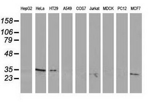 RTFDC1 Antibody - Western blot of extracts (35 ug) from 9 different cell lines by using anti-C20orf43 monoclonal antibody.