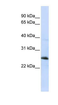 RTN1 / Reticulon 1 antibody LS-C102340 Western blot of Jurkat lysate.  This image was taken for the unconjugated form of this product. Other forms have not been tested.