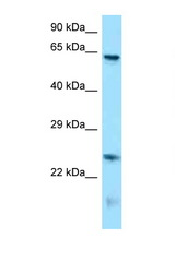 RUNX1T1 antibody Western blot of Mouse Brain lysate. Antibody concentration 1 ug/ml.  This image was taken for the unconjugated form of this product. Other forms have not been tested.