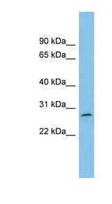 RUSC1-AS1 / C1orf104 Antibody - C1orf104 antibody Western blot of ACHN lysate. This image was taken for the unconjugated form of this product. Other forms have not been tested.