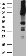 RUSC2 Antibody - HEK293T cells were transfected with the pCMV6-ENTRY control. (Left lane) or pCMV6-ENTRY RUSC2. (Right lane) cDNA for 48 hrs and lysed. Equivalent amounts of cell lysates. (5 ug per lane) were separated by SDS-PAGE and immunoblotted with anti-RUSC2. (1:2000)