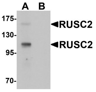 Western blot analysis of RUSC2 in SK-N-SH cell lysate with RUSC2 antibody at 1 ug/ml in (A) the absence and (B) the presence of blocking peptide