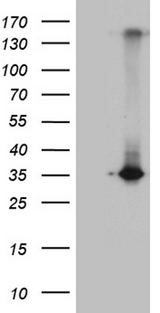 RWDD3 Antibody - HEK293T cells were transfected with the pCMV6-ENTRY control. (Left lane) or pCMV6-ENTRY RWDD3. (Right lane) cDNA for 48 hrs and lysed. Equivalent amounts of cell lysates. (5 ug per lane) were separated by SDS-PAGE and immunoblotted with anti-RWDD3. (1:2000)