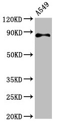 Western Blot Positive WB detected in: A549 whole cell lysate All lanes: RXFP2 antibody at 4.6µg/ml Secondary Goat polyclonal to rabbit IgG at 1/50000 dilution Predicted band size: 87, 84 kDa Observed band size: 87 kDa