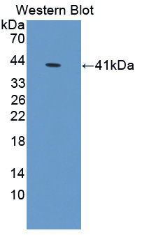 S100A10 Antibody - Western blot of S100A10 antibody.