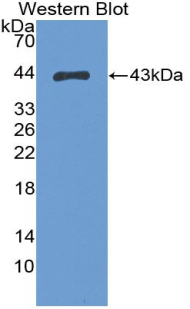 S100A2 Antibody - Western blot of recombinant S100A2.