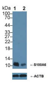 Knockout Varification: Lane 1: Wild-type Hela cell lysate; Lane 2: S100A6 knockout Hela cell lysate; Predicted MW: 10kDa ; Observed MW: 10kDa; Primary Ab: 4µg/ml Rabbit Anti-Human S100A6 Antibody; Second Ab: 0.2µg/mL HRP-Linked Caprine Anti-Rabbit IgG Polyclonal Antibody;